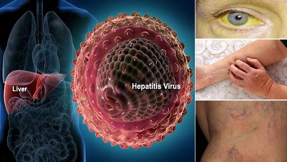 Awareness on Hepatitis